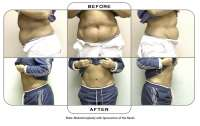 Note: Abdominoplasty with liposuction of the flanks