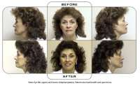 Note: Eye lids uppers and lowers (blepharoplasty). Patient also had facelift and open brow.