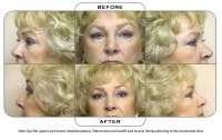 Note: Eye lids uppers and lowers (blepharoplasty). Patient also had facelift and muscle interpositioning to the marionette lines.