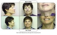 Note: Facelift (Rhytidectomy) with upper lids and open brow lift.