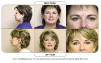 Note: Facelift (Rhytidectomy) with open brow lift and tissue interpositioning to the glabellar rhytids (frown lines).