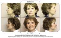 Note: Forehead lift (open browlift in the scalp) with lower lids (blepharoplasty), dermabrasion upper and lower lips, and dermal fat injection to the oral commissure region (around the mouth).