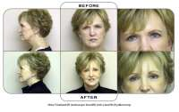 Note: Forehead lift (endoscopic browlift) with a facelift (rhytidectomy).